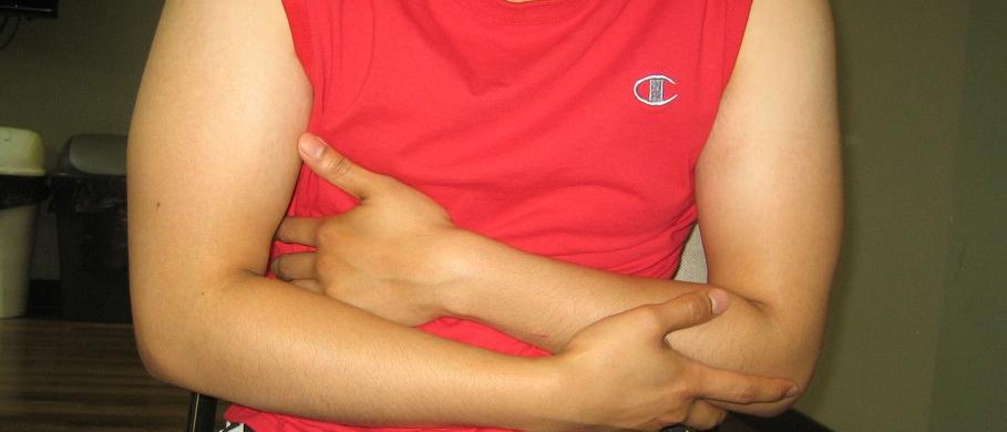 Dealing with ulcerative colitis flare-ups