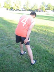 leg-aneurysm